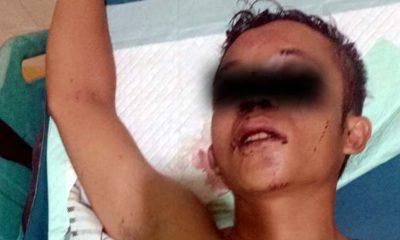 Pelaku dijahit bagian kepalanya dan barang bukti kunci T. (Humas Polres Malang)